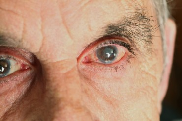 WellnessHighlights-Glaucoma-0319-min